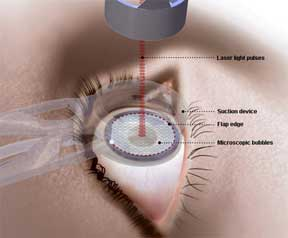 lasik eye surgery and 3d movies